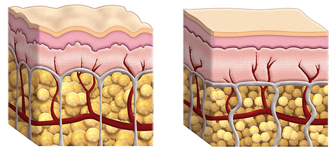 Skin Structure Cellulite Versus No Cellulite