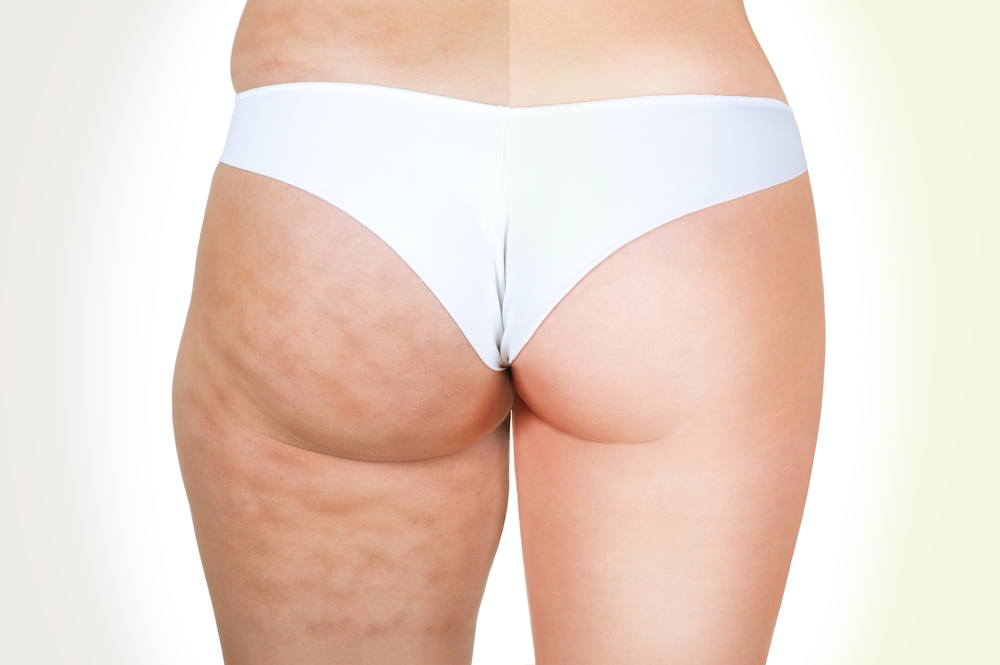 The SKINNY on Cellulite!