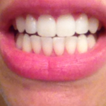 After Second Smile Sciences Teeth Whitening Review