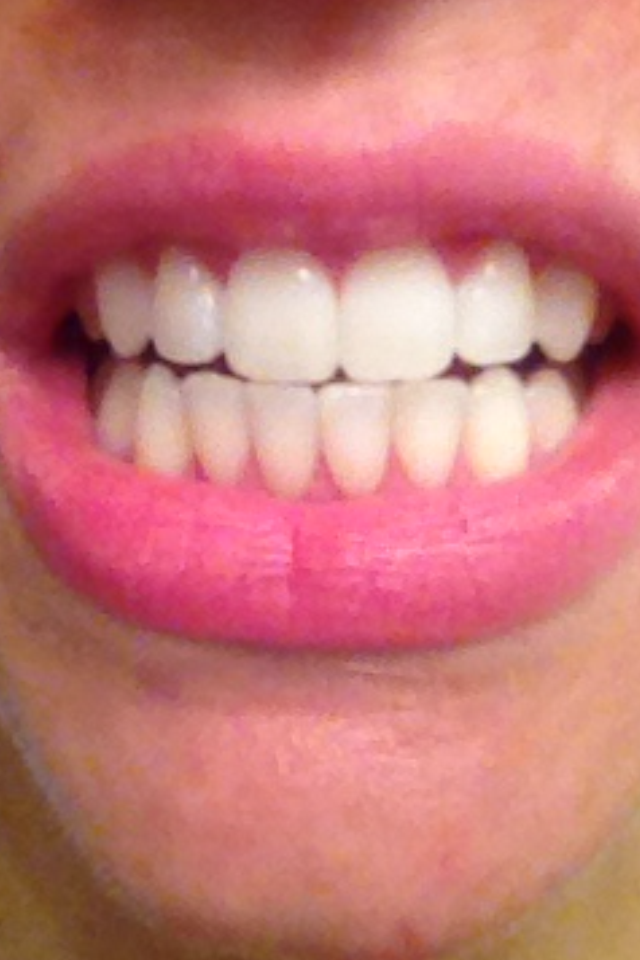 Smile Sciences Review Day By Day Beauty Blog